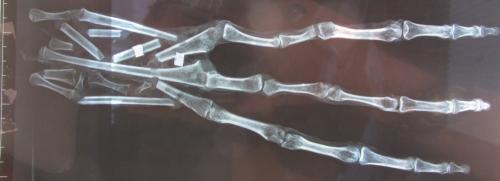 """Die """"Alien-Hand"""" aus Peru, Bild 2 - Zur Großansicht anklicken (Bild: YouTube-Screenshot Tyler Cusco)"""