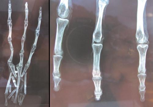 """Die angebliche """"Alien-Hand"""" aus Peru - Zur Großansicht anklicken (Bild: YouTube-Screenshot Tyler Cusco)"""
